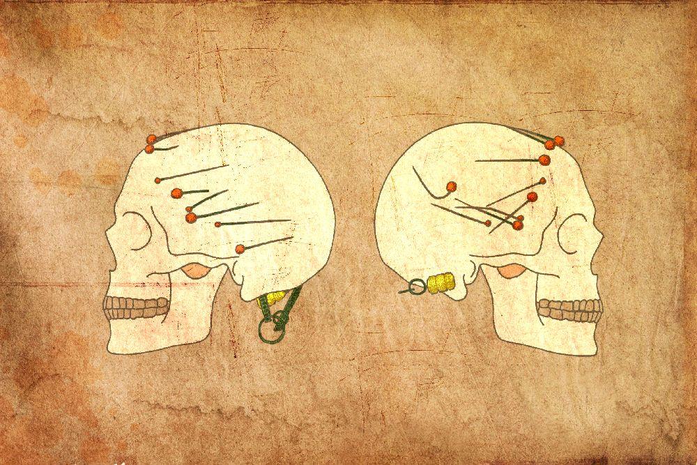 Grafik einer Hallstattfrau die im Magdalenenberg gefunden wurde. Zu sehen ist ihr Schädel im Profil von links und von rechts. Sie trägt einen Ohrring und Haarnadeln, die mit Bernsteinen verziehrt sind.