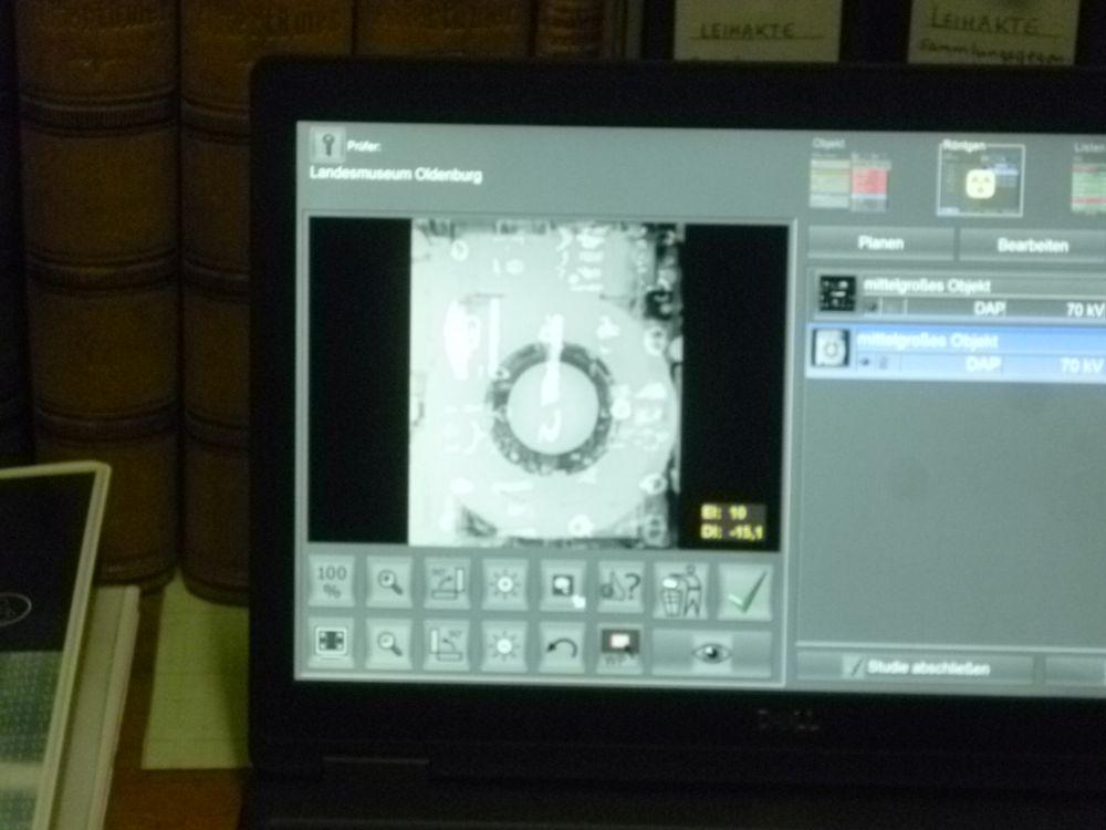 Ein Laptop auf dem ein seltsames Röntgenbild aus wirren geometrischen Formen angezeigt wird.