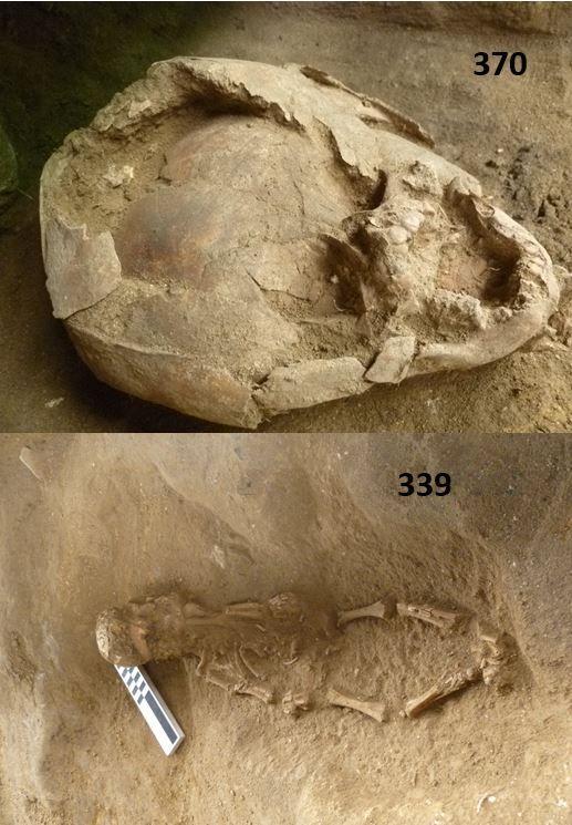 Zweigeteiltes Bild. Oben idt eine Nahaufnahme eines Kinderschädels zu sehen, der eingedrückt ist, und wuaf dem ein weiterer Schädelknochen liegt, unten ist das gesammte Kinderskelett gezeigt.